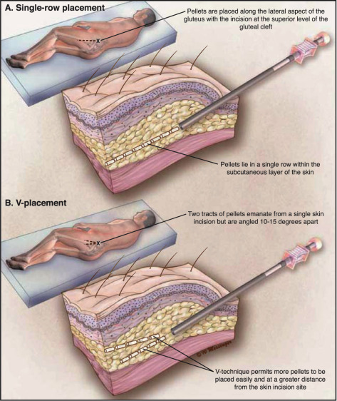 """Outcomes with the """"V"""" Implantation Technique vs. Standard"""