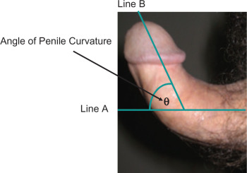 curvature of penis left sudden to