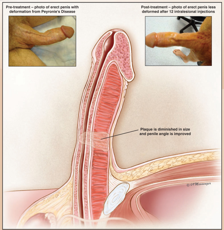 Surgical Techniques: Intralesional Injection Therapy for ...