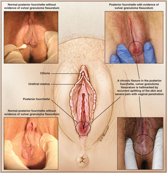 Fourchette of vagina